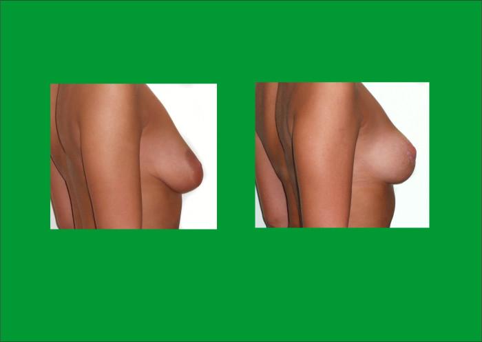 podniesienie piersi z cięcia wokół otoczki