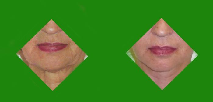 63 (1) face lifting dolnej polowy twarzy i szyi