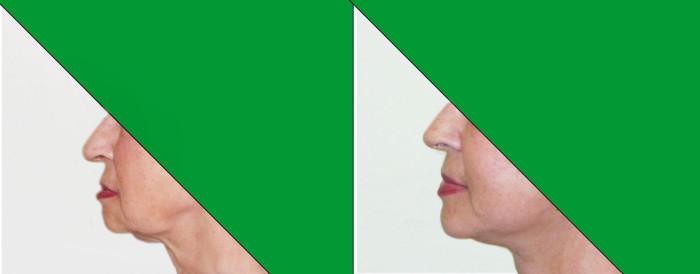 63 (2) face lifting dolnej polowy twarzy i szyi